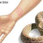 Δαγκώματα από φίδι